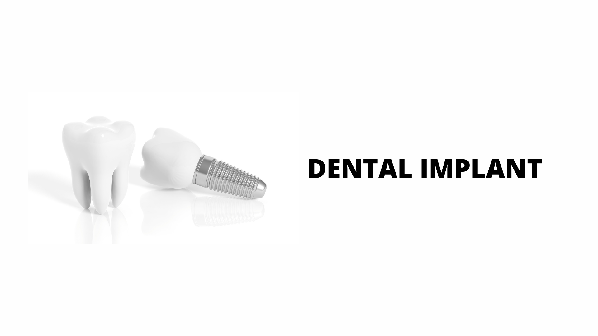 Implant is fit for you?
