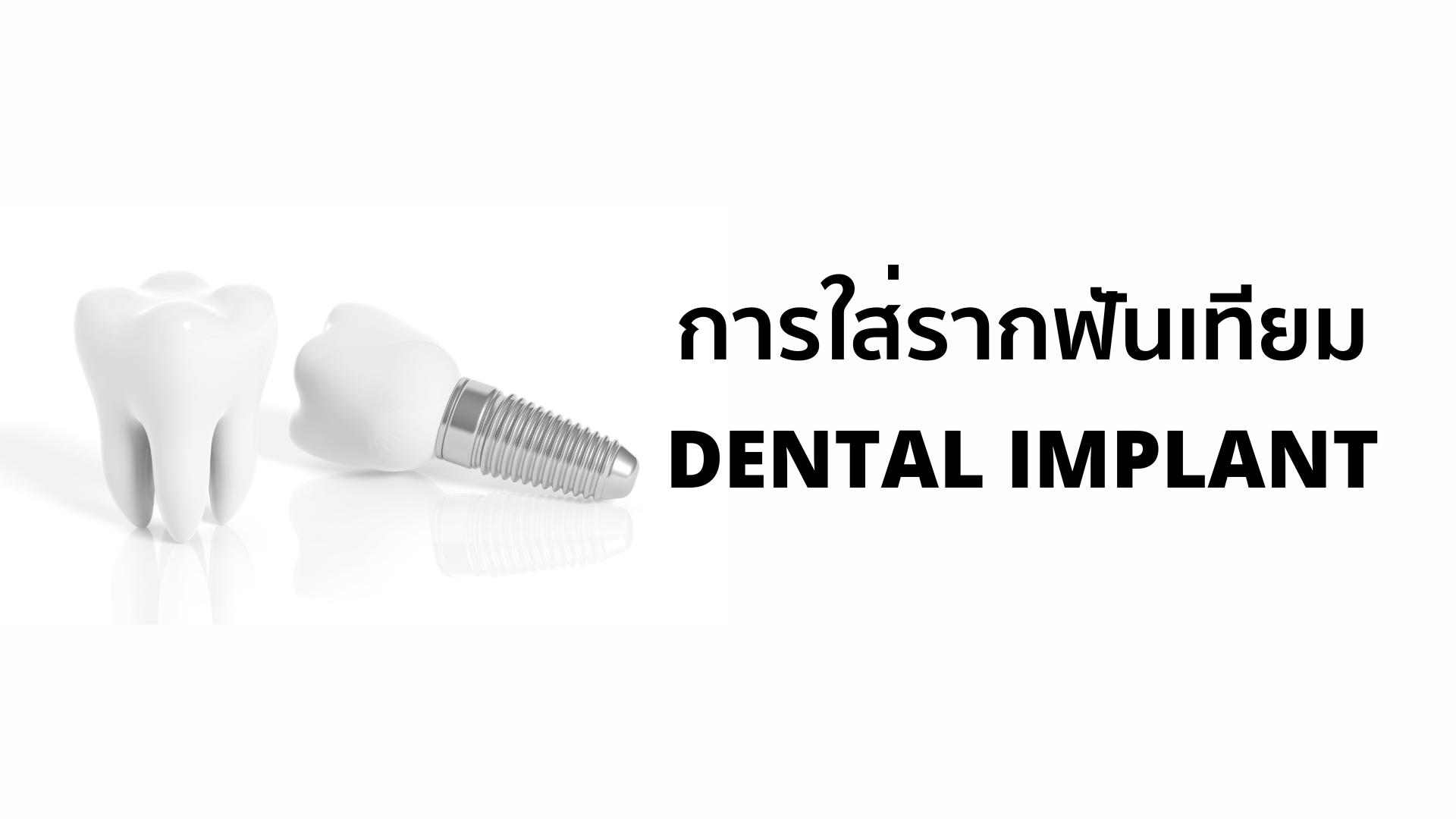 การใส่รากฟันเทียม