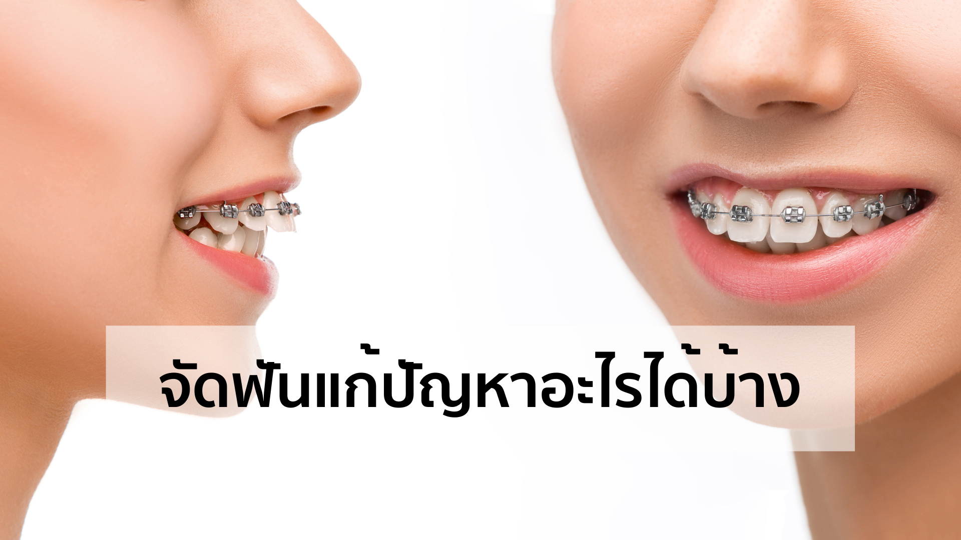 จัดฟันแก้ปัญหาอะไรได้บ้าง