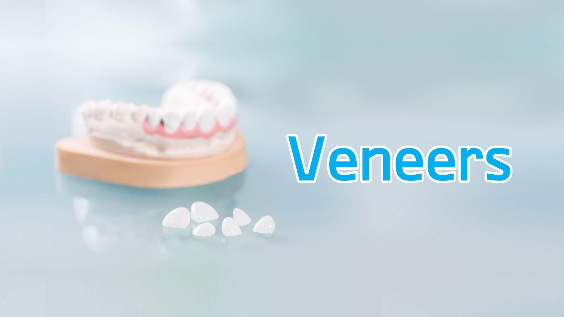 การทำวีเนียร์/Veneers